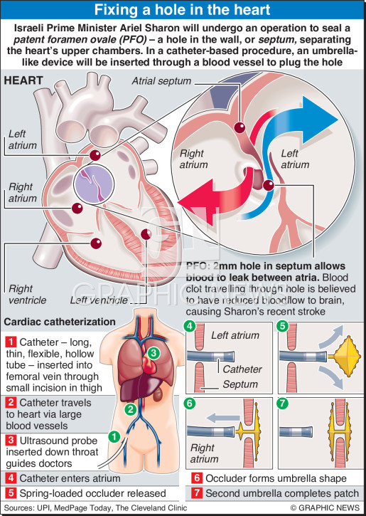 Fixing a hole in the heart infographic