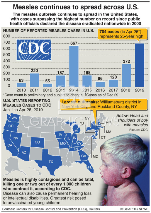 U.S. measles outbreak infographic