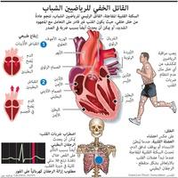SPORT: Sudden cardiac arrest in athletes infographic