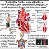 SPORT: Plötzlicher Herztod bei jungen Athleten infographic