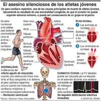 DEPORTE: Paro cardíaco repentino en atletas  infographic