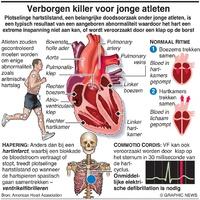 SPORT: Plotselinge hartstilstand bij atleten infographic