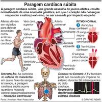 DESPORTO: Paragem cardíaca súbita nos atletas infographic