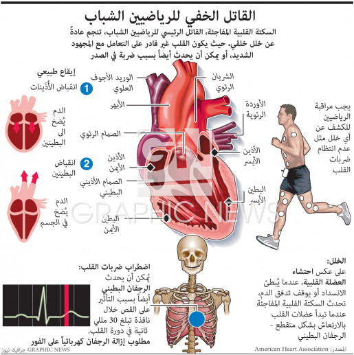 Sudden cardiac arrest in athletes infographic