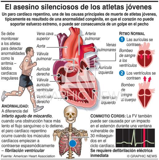 Paro cardíaco repentino en atletas  infographic
