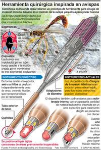 SALUD: Nueva herramienta quirúrgica inspirada en avispas  infographic